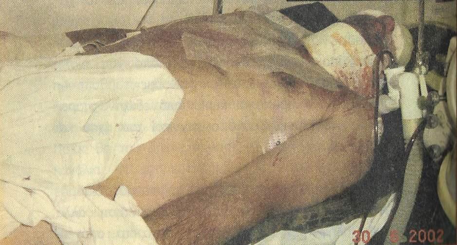 Ημερομηνία 30/06/2002. Ο Σάββας Ξηρός στο χειρουργείο πολυτραυματίας. Ποιος ευσυνείδητος λειτουργός αναλαμβάνει την αυθύνη να ανακρίνει έναν άνθρωπο σε μια τέτοια κατάσταση;
