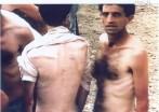 1992-08-xx - Trnopolje concentration camp Another View - Στρατόπεδα συγκέντρωσης μουσουλμάνων - trnopolje-concentration-camp-beaten-emaciated-bosnian-muslim-civilians1