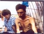 1992-08-xx - Trnopolje concentration camp Another View - Στρατόπεδα συγκέντρωσης μουσουλμάνων - trnopolje-concentration-camp-emaciated-bosnian-muslim-man1