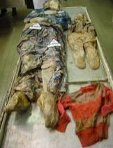 University Clinical Center Tuzla - Srebrenica genocide - Bosniak Muslim children victims