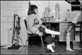 Sarajevo. 1993. Nine year old Samra GRAPHO had a foot amputated in July 1993, when a Serb mortar shell landed outside her house. For the first time she tries on an artificial leg at the NERETVA Orthopedic Center, © A. Abbas/Magnum Photos
